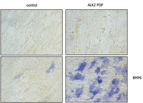 Het LUMC heeft ontdekt dat het FOP-ALK2 eiwit continu signalen kan afgeven ook in afwezigheid van BMPs